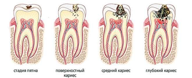 Лечение глубокого кариеса в Москве