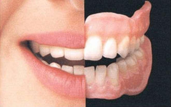 Полное протезирование зубов: цены в Москве