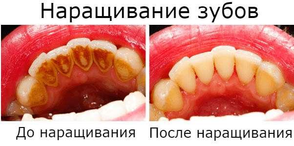 Сколько стоит нарастить зуб в Москве
