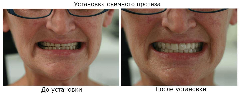 Съемное протезирование зубов в Москве