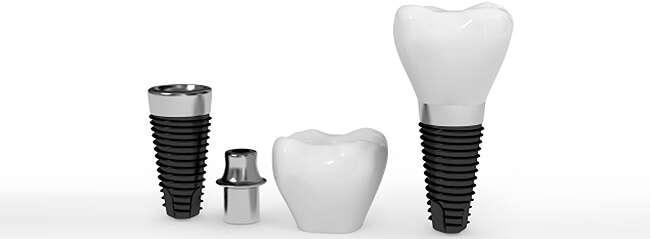 Стоимость имплантов зубов в Москве под ключ