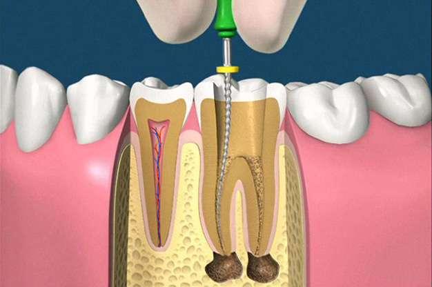 Стоимость лечения каналов зуба